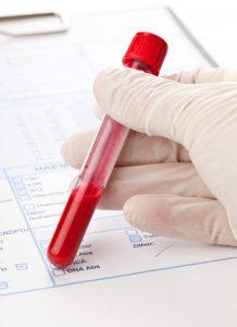 HbA1c– המוגלובין מסוכרר