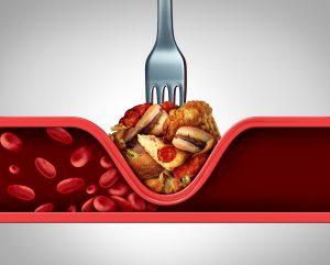 חסימת עורקים מהמזון שאוכלים