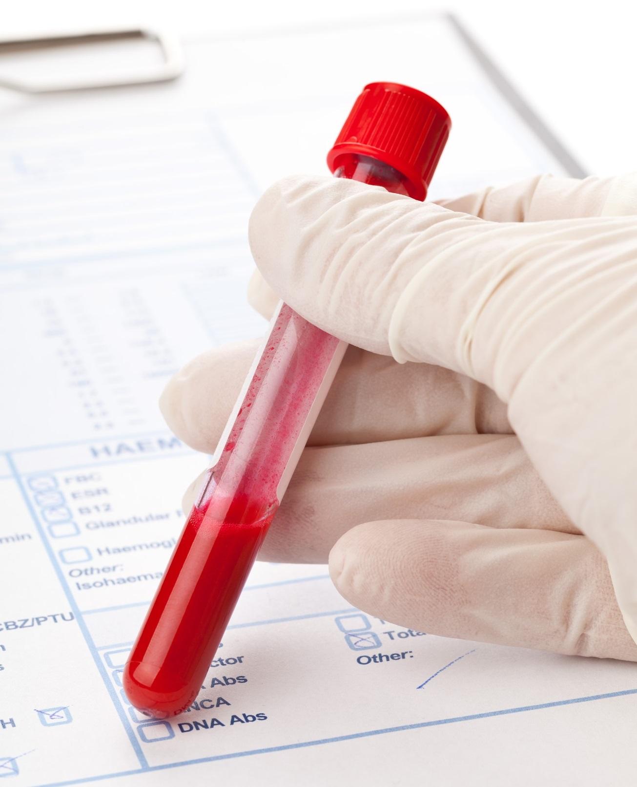 ה- HbA1C   ירד מ 11.4% ל- 6.1% – ב- 4 חודשים!